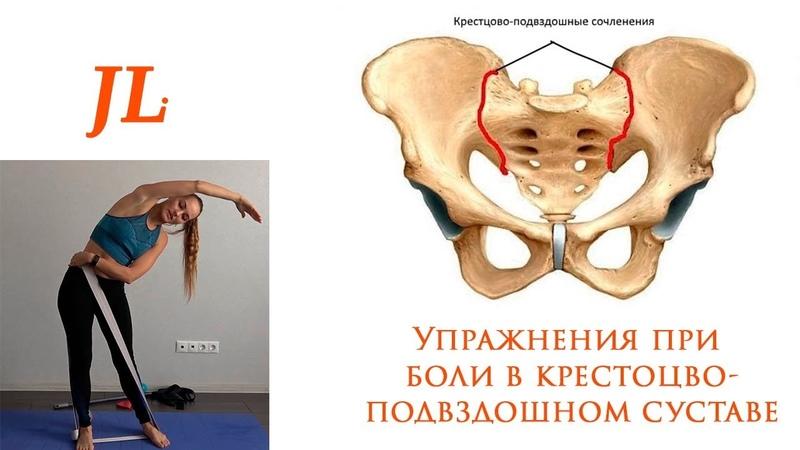Упражнения при боли в крестцово подвздошном суставе Дисфункция КПС