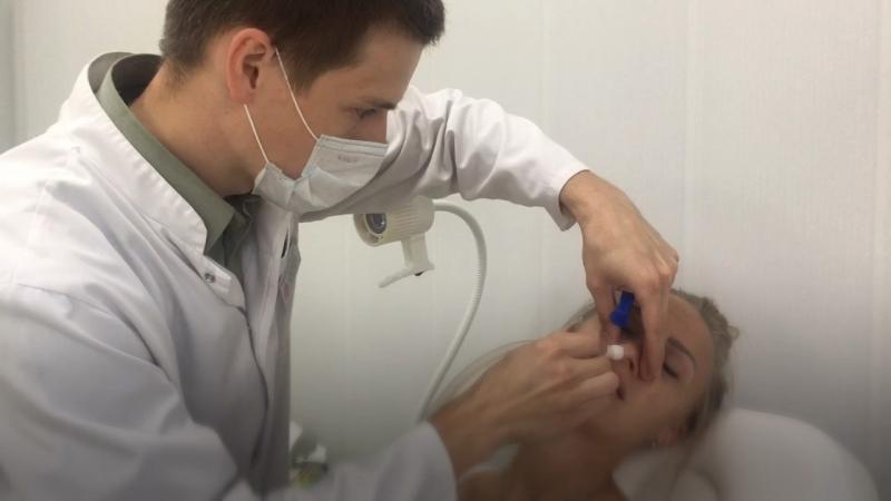 Промывание носа в МЦ ЗДОРОВЬЕ