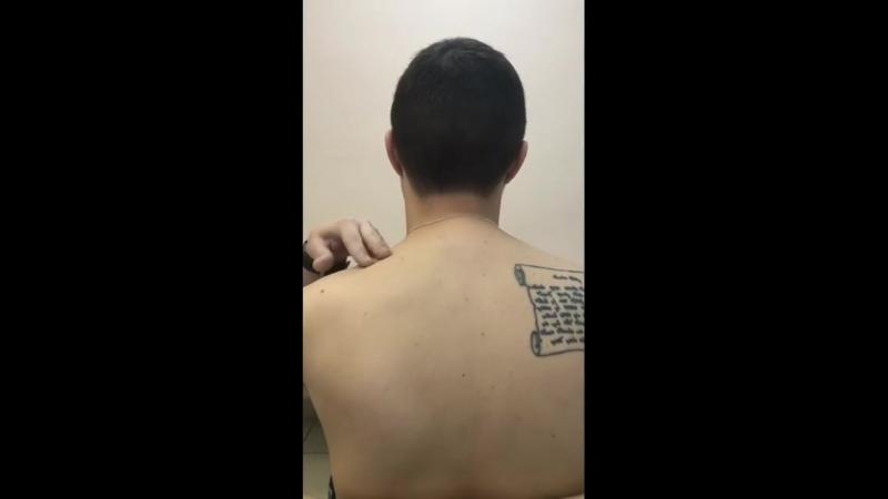 FDM-терапия. Острая мышечная кривошея у взрослого пациента. Мужчина проснулся и не смог поворачивать голову.