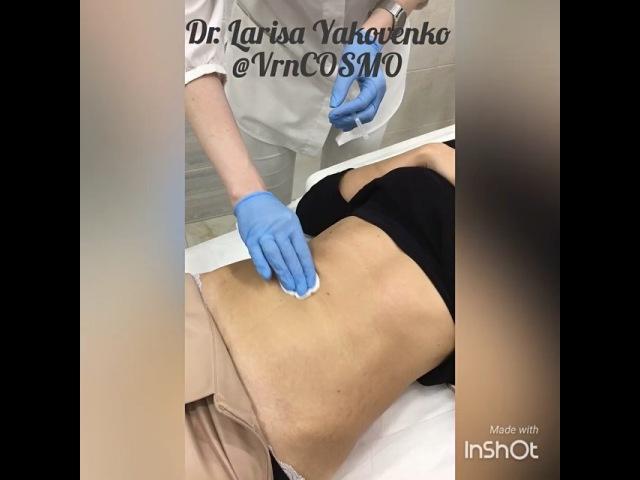 VrnCOSMO on Instagram А ваш животик готов к лету ☺️ Постановка мезонитей поможет вам если нужно 🔹привести в порядок растянутую после родов к
