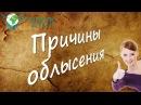 Причины облысения Видеоответ Академия Целителей Николай Пейчев