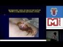 Тактика при лечении больных с наружными свищами поджелудочной железы