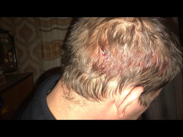 П'яненький йшов додому отримав постріл в голову з пневматичного пістолету і ліг спати