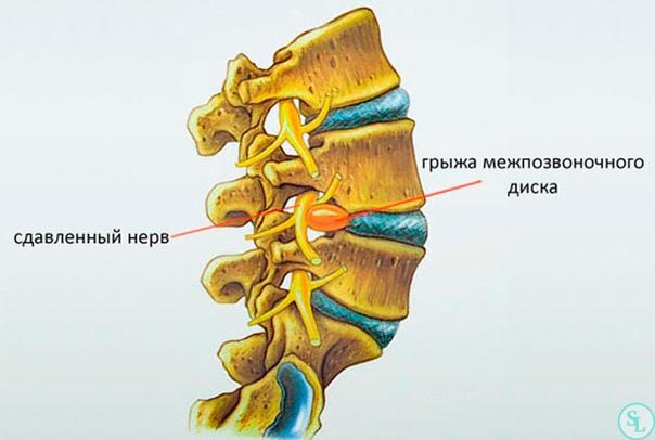 ГРЫЖА МЕЖПОЗВОНОЧНОГО ДИСКА В позвоночнике здорового человека диск служит в качестве амортизатора, который подавляет ударные волны, возникающие при ходьбе и беге. Межпозвоночные диски делают